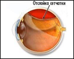 Ретинопатия, отслойка сетчатки, лечение отслойки сетчатки, отслойка сетчатки лечение, лекарства от отслойки сетчатки, средства от отслойки сетчатки, ретинопатия лечение, лечение ретинопатии, лекарства от ретинопатии, средства от ретинопатии, частичная отслойка сетчатки, неполное отслоение сетчатки, чем лечить ретинопатию, чем лечить отслойку сетчатки, отслойка сетчатки лечение народное, отслойка сетчатки лечение травами, отслойка сетчатки лечение иглами, отслойка сетчатки лечение лазером. Киев