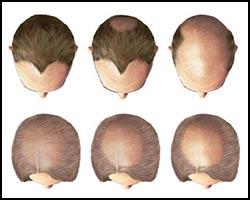 Облысение, алопеция, лечение облысения, облысение лечение, лекарства от облысения, средства от облысения, алопеция лечение, лечение алопеции, лекарства от алопеции, средства от алопеции, частичное облысение, полное облысение, очаговая плешивость, очаговая плешивость лечение, лечение очаговой плешивости, лекарства от очаговой плешивости, гнездная плешивость, гнездная плешивость лечение, лечение гнездной плешивости, лекарства от гнездной плешивости, стригущий лишай, стригущий лишай лечение. Киев
