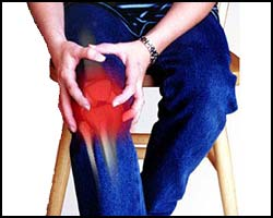 Артрит, лечение артрита, артрит лечение, лекарства от артрита, средства от артрита, мази от артрита, артрит коленного сустава, артрит суставов, артрит рук, плечевой артрит, артрит плечевого сустава, как лечить артрит, лечение коленного артрита, ювенильный артрит, артрит пальца, артрит стоп, коленный артрит, артрит лечение народное, артрит лечение травами, артрит лечение пчелами, артрит лечение апитерапией, артрит лечение иглами, артрит лечение лазером, артрит лечение мазями, артрит лечить эффективно. Киев
