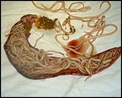 настойки от паразитов в организме человека