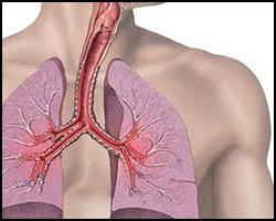 Бронхиальная астма, астма бронхиальная, лечение бронхиальной астмы, бронхиальная астма лечение, как лечить бронхиальную астму, лечение бронхиальной астмы в киеве, лекарства от бронхиальной астмы, средства от бронхиальной астмы, астма бронхиальная лечение, лечение астмы бронхиальной, как лечить астму бронхиальную, лекарства от астмы бронхиальной, средства от астмы бронхиальной, бронхиальная астма лечение пчелами, бронхиальная астма лечение иглами, бронхиальная астма лечение народное. Киев