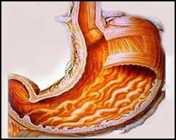 Гастрит, лечение гастрита, гастрит лечение, лекарства от гастрита, средства от гастрита, гастрит лечение лазером, гастрит лечение травами, гастрит лечение иглами, гастрит лечение рефлексотерапией, гастрит лечение аромамаслами, гастрит лечение народное, гастрит лечение пчелопродуктами, гастрит эрозивный, гастрит язвенный, гастрит катаральный, гастрит коррозивный, гастрит алиментарный, гастрит хронический, гастрит острый, гастрит атрофический, гастрит гиперацидный, гастрит анацидный, гастрит поверхностный