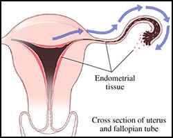 Эндометрит, лечение эндометрита, эндометрит лечение, лекарства от эндометрита, средства от эндометрита, лечение эндометрита в киеве, как лечить эндометрит, эндометрит лечение, эндометрит лечение, эндометрит хронический, эндометрит острый, эндометрит специфический, воспаление слизистой оболочки матки, воспаление эндометрия, эндометрит лечение народное, эндометрит лечение травами, эндометрит лечение иглами, эндометрит лечение рефлексотерапией, эндометрит лечение лазером, спринцевания от эндометрита. Киев