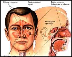 Фронтит, лечение фронтита, фронтит лечение, лекарства от фронтита, средства от фронтита, чем лечить фронтит, как лечить фронтит, фронтит лечение народное, фронтит лечение травами, фронтит лечение иглами, фронтит лечение лазером, фронтит лечение рефлексотерапией, фронтит лечение ультразвуком, фронтит лечение магнитом, фронтит лечение пчелами, фронтит лечение пчелиным ядом, фронтит лечение апитерапией, фронтит лечение аромамаслами, фронтит новое в лечении, фронтит острый, фронтит хронический. Киев