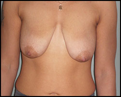Подтягивание кожи молочных желез, опущение молочных желез, обвисание молочных желез, лифтинг груди, кремы для подтягивания молочных желез, средства для подтягивания молочных желез, лифтинг молочных желез, как сделать лифтинг молочных желез, обвисание молочных желез реферат, лечение опущенных молочных желез, опущение молочных желез, обвислые молочные железы, мастоптоз реферат, мастоптоз лечение, лечение мастоптоза, мастоптоз лечение народное, мастоптоз лечение лазером, мастоптоз лечение иглами. Киев