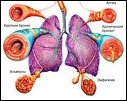 Препараты от варикоза капли