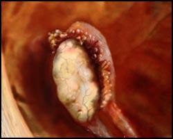 Опсоменорея, лечение опсоменореи, опсоменорея лечение, опсоменорея реферат, опсоменорея статья, лекарства от опсоменореи, средства от опсоменореи, лечение опсоменореи в киеве, как лечить опсоменорею, опсоменорея лечение народное, опсоменорея лечение травами, опсоменорея лечение иглами, опсоменорея лечение лазером, опсоменорея лечение аромамаслами, опсоменорея лечение физиотерапией, опсоменорея лечение магнитом, опсоменорея лечение ультразвуком, опсоменорея лечение пчелами. Киев