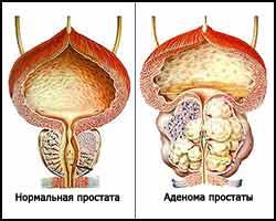 Аденома предстательной железы, лечение аденомы простаты, аденома простаты лечение, лечение аденомы предстательной железы, аденома предстательной железы лечение, доброкачественная гиперплазия предстательной железы, доброкачественная гиперплазия предстательной железы лечение, аденома простаты, парауретральная аденома, парауретральная аденома лечение, парауретральная гиперплазия предстательной железы, гиперплазия простаты, гиперплазия простаты лечение, аденома простаты болезнь. Киев