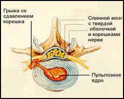 Грыжа спинномозговая, грыжа спинного мозга, лечение спинномозговой грыжи, спинномозговая грыжа лечение, лекарства от спинномозговой грыжи, средства от спинномозговой грыжи,  грыжа спинного мозга, грыжа спинного мозга лечение, лечение грыж спинного мозга, лекарства от грыж спинного мозга, средства от грыж спинного мозга, спинномозговая грыжа лечение пчелами, спинномозговая грыжа лечение апитерапией, спинномозговая грыжа лечение народное, спинномозговая грыжа лечение травами. Киев