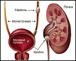 Мочекаменная болезнь, лечение мочекаменной болезни, уролитиазис, мочекаменная болезнь лечение, лечение уролитиазис, уролитиазис лечение, как лечить уролитиазис, как лечить мочекаменную болезнь, лекарства от мочекаменной болезни, средства от мочекаменной болезни, лекарства от уролитиазиса, средства от уролитиазиса, уролитиазис лечение травами, уролитиазис лечение народное, уролитиазис лечение пчелами, камни в почках, мочекаменная болезнь лечение травами, мочекаменная болезнь лечение народное. Киев