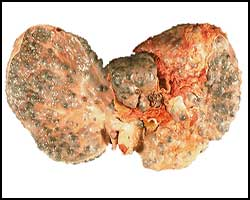Вирусный гепатит, вирусный гепатит лечение, лечение вирусного гепатита, вирусный гепатит С, вирусный гепатит В, вирусный гепатит Е, вирусный гепатит А, вирусный гепатит С, вирусный гепатит D, вирусный гепатит G, как лечить вирусный гепатит, лекарства от вирусного гепатита, вирусный гепатит реферат, вирусный гепатит лечение народное, вирусный гепатит лечение травами, вирусный гепатит лечение лазером, вирусный гепатит лечение иглами, вирусный гепатит лечение магнитом. Киев